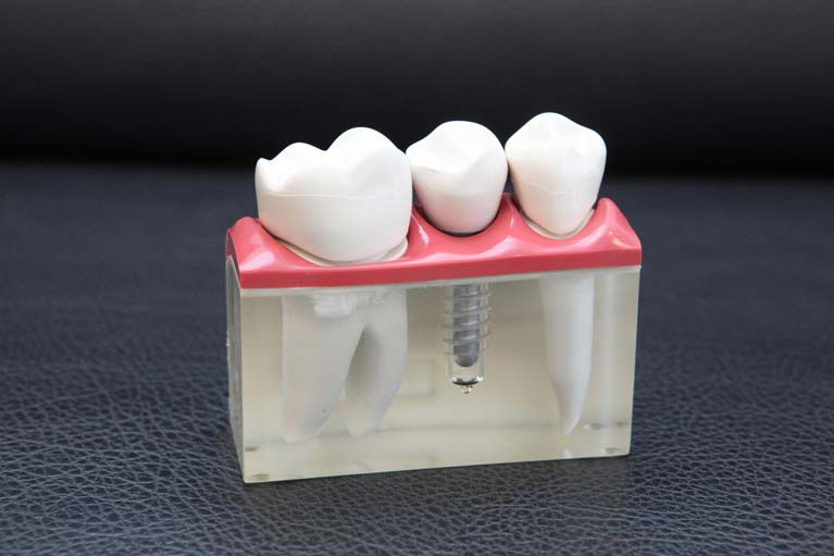 タナカ歯科のインプラント治療