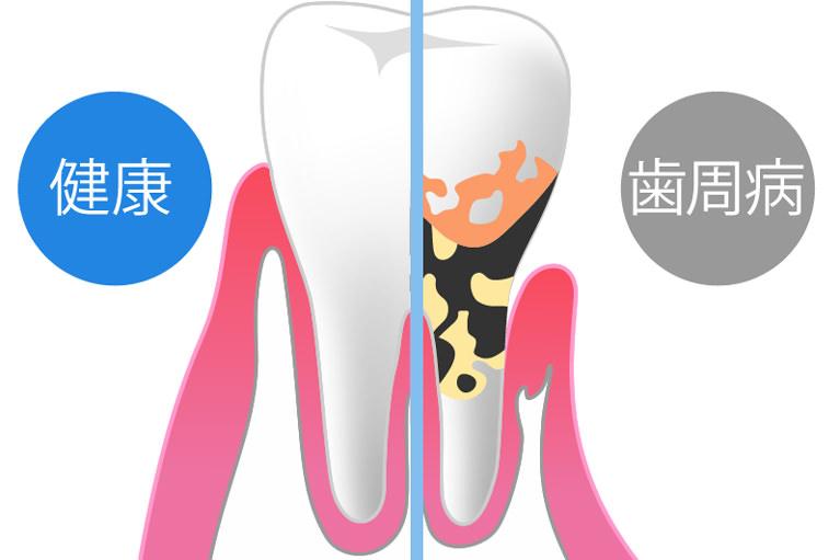 歯周病のとは自覚の少なさ
