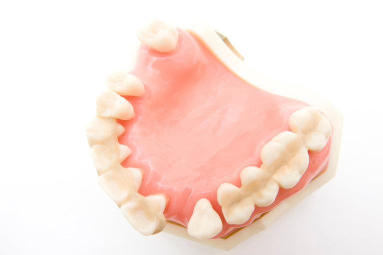 歯周病で歯が抜けるかどうか